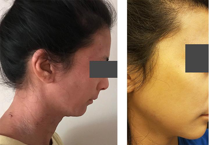 eczema and tsw