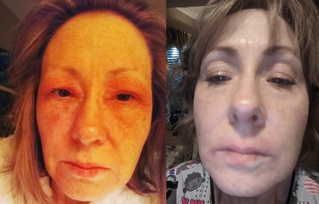 facial eczema before and after