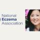 TSW: What the Eczema Community Needs to Know, Now