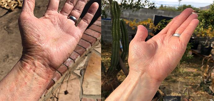 eczema case photo