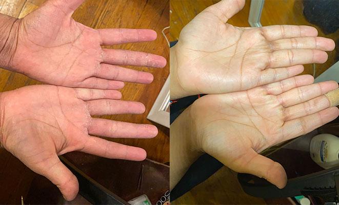 tsw palms of hands