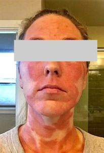 woman with TSW skin condition